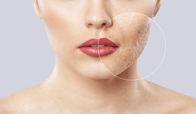 CBD bei Hautproblemen